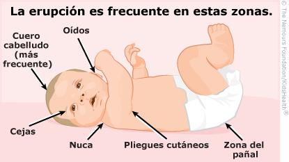 Lugares donde el bebé puede tener dermatitis